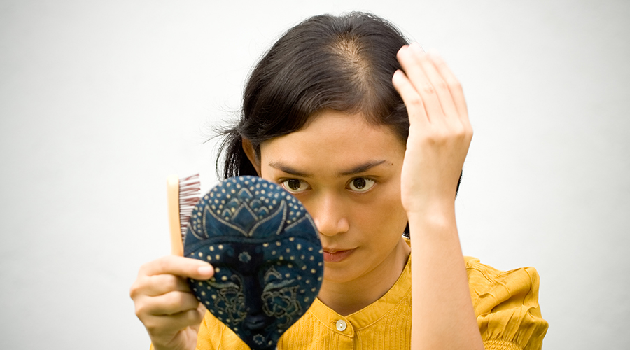 Role of lifestyle causing baldness