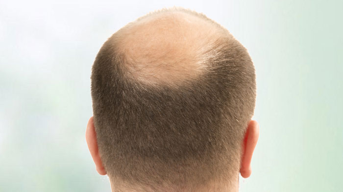 Hair loss treatment and Surgery