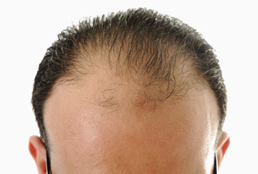 Eugenix Male Hair Transplant